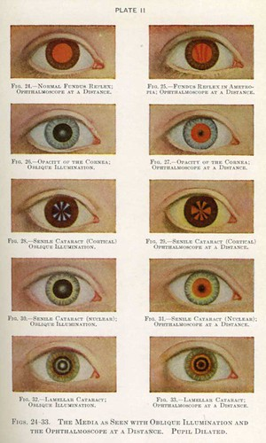 review of optometry handbook of ocular disease