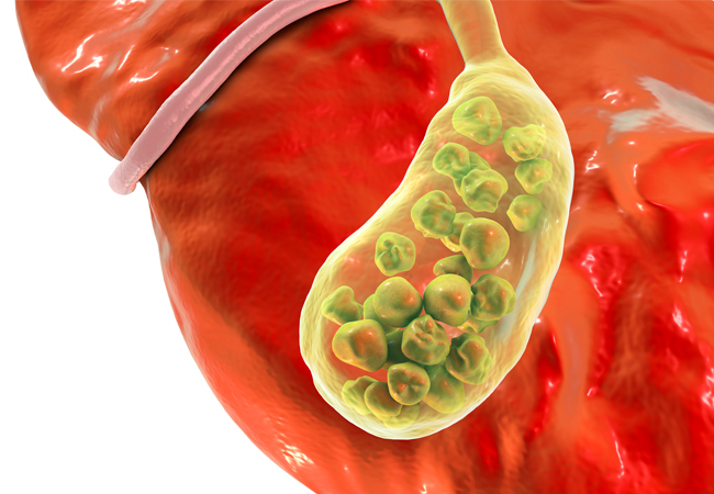 the liver and gallbladder miracle cleanse reviews